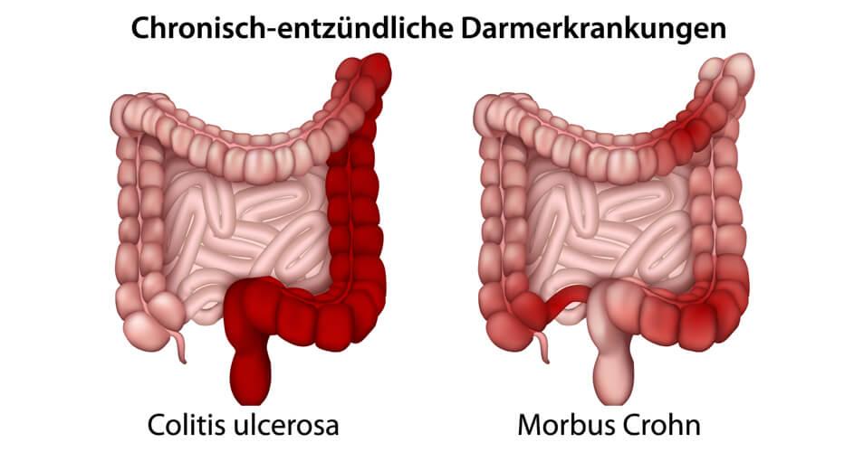Unterschiede zwischen Colitis ulcerosa und Morbus Crohn (CED)